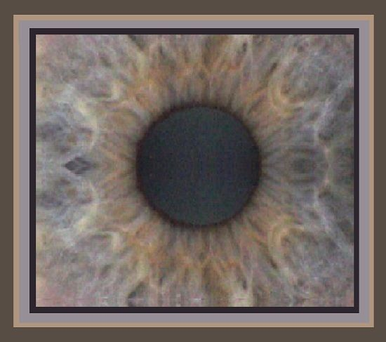 130125-emrighteye-irisrug2
